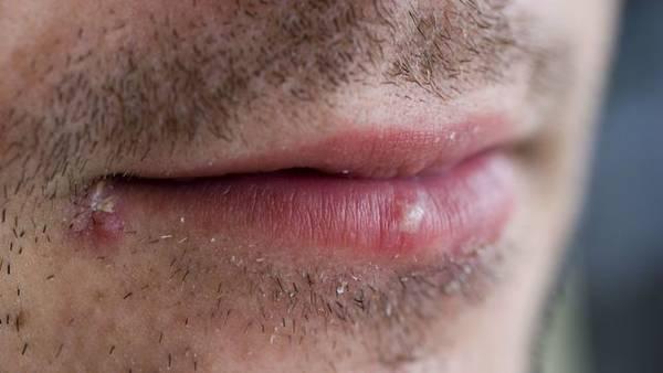 herpes labial symptomes
